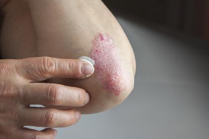 Dermatose du coude
