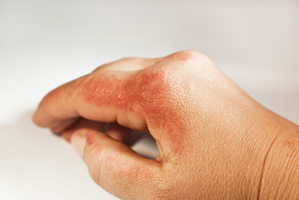 Les brûlures peuvent être superficielles, il faut néanmoins les traiter avec des produits adaptés